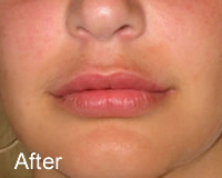 Luscious Lips after - Wrinklefree.ie