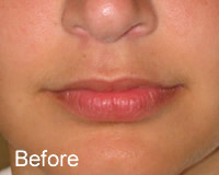 Luscious Lips before - Wrinklefree.ie